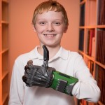 Colin Consavage with his 3-D printed prosthetic hand